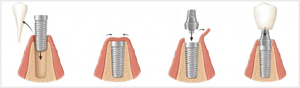 dental-implant-surgery-process.jpg
